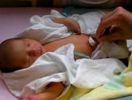 新生児の小児はり治療 生後2日の赤ちゃんの場合